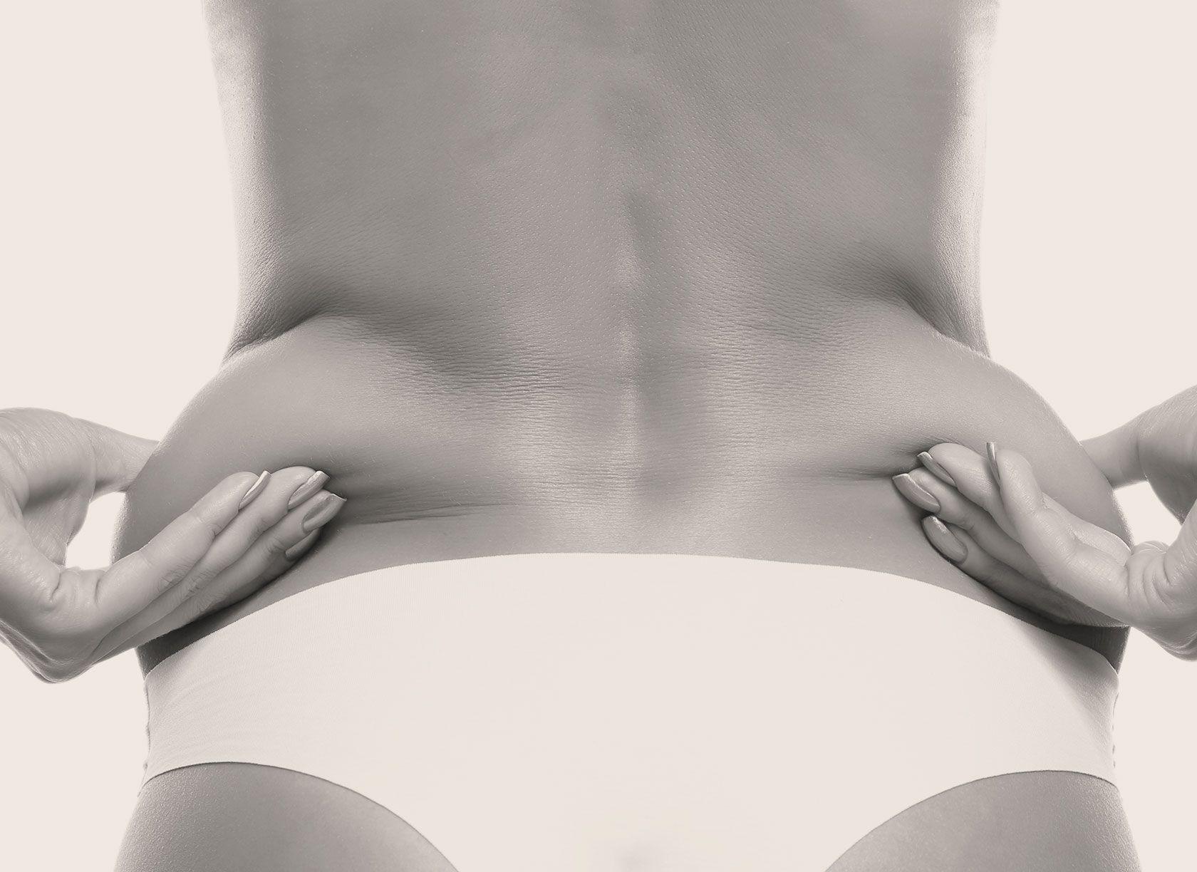 La liposuccion du bas du dos à Paris 8 par le Dr Pachet
