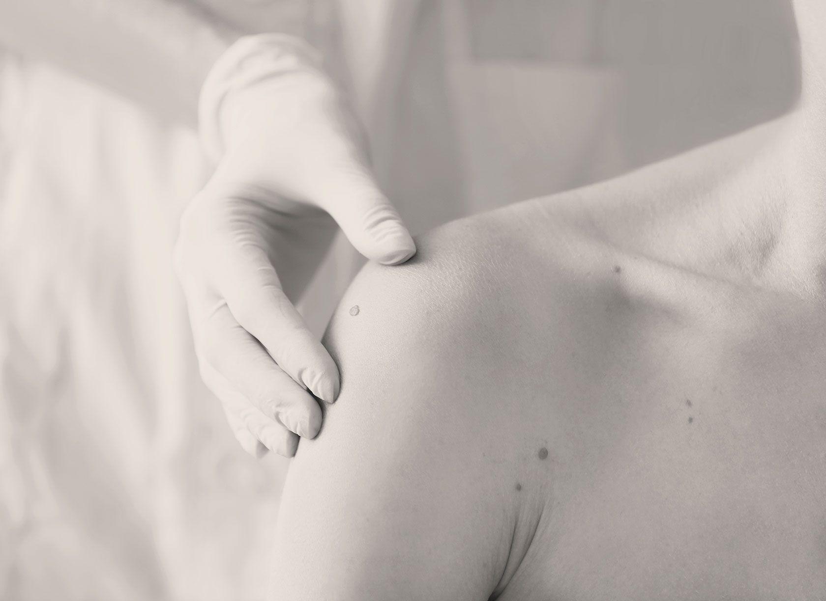 Chirurgie des tumeurs benignes à Paris 8 par le Dr Pachet