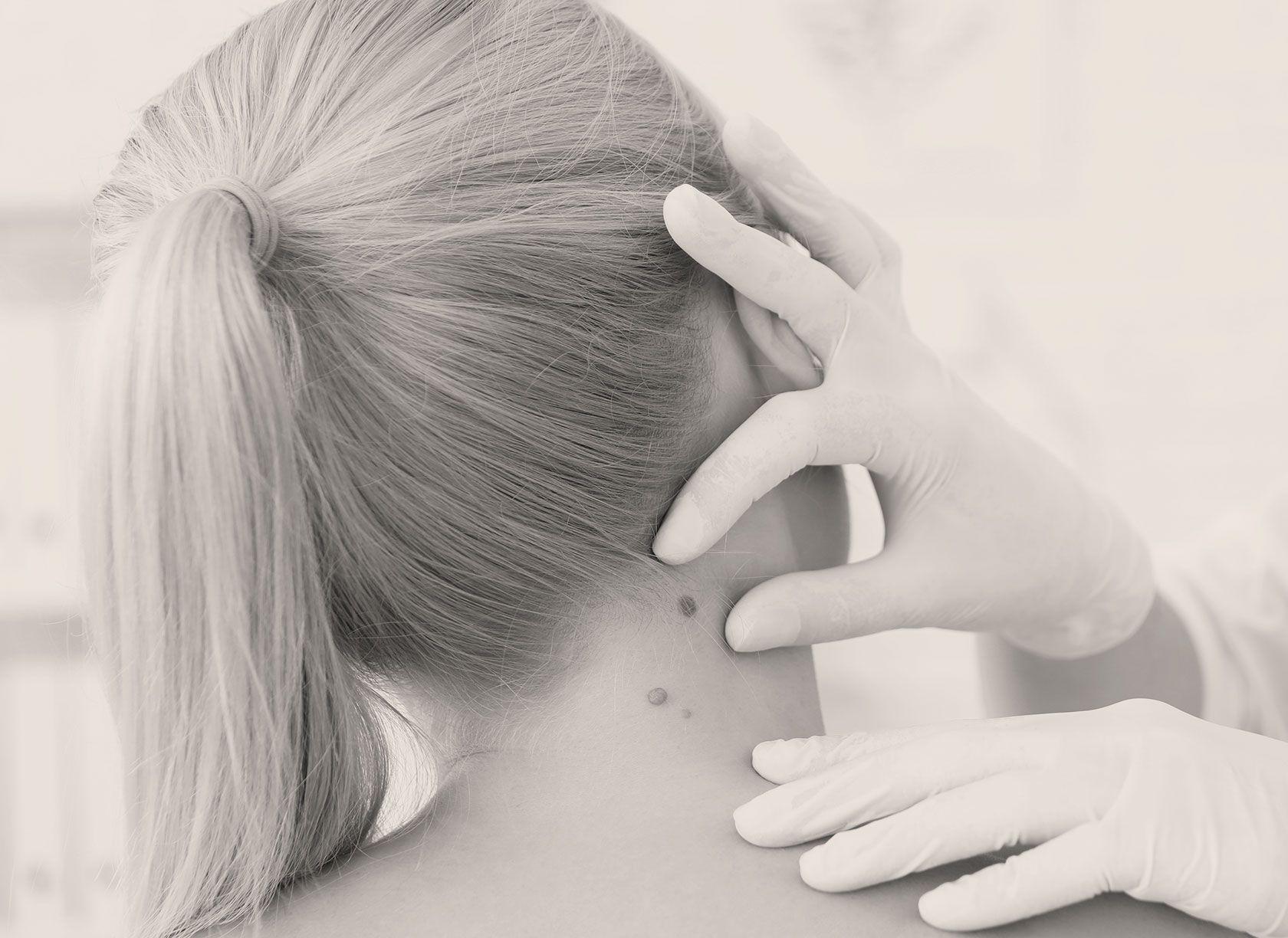 Chirurgie des cancers de la peau à Paris 8 par le Dr Pachet